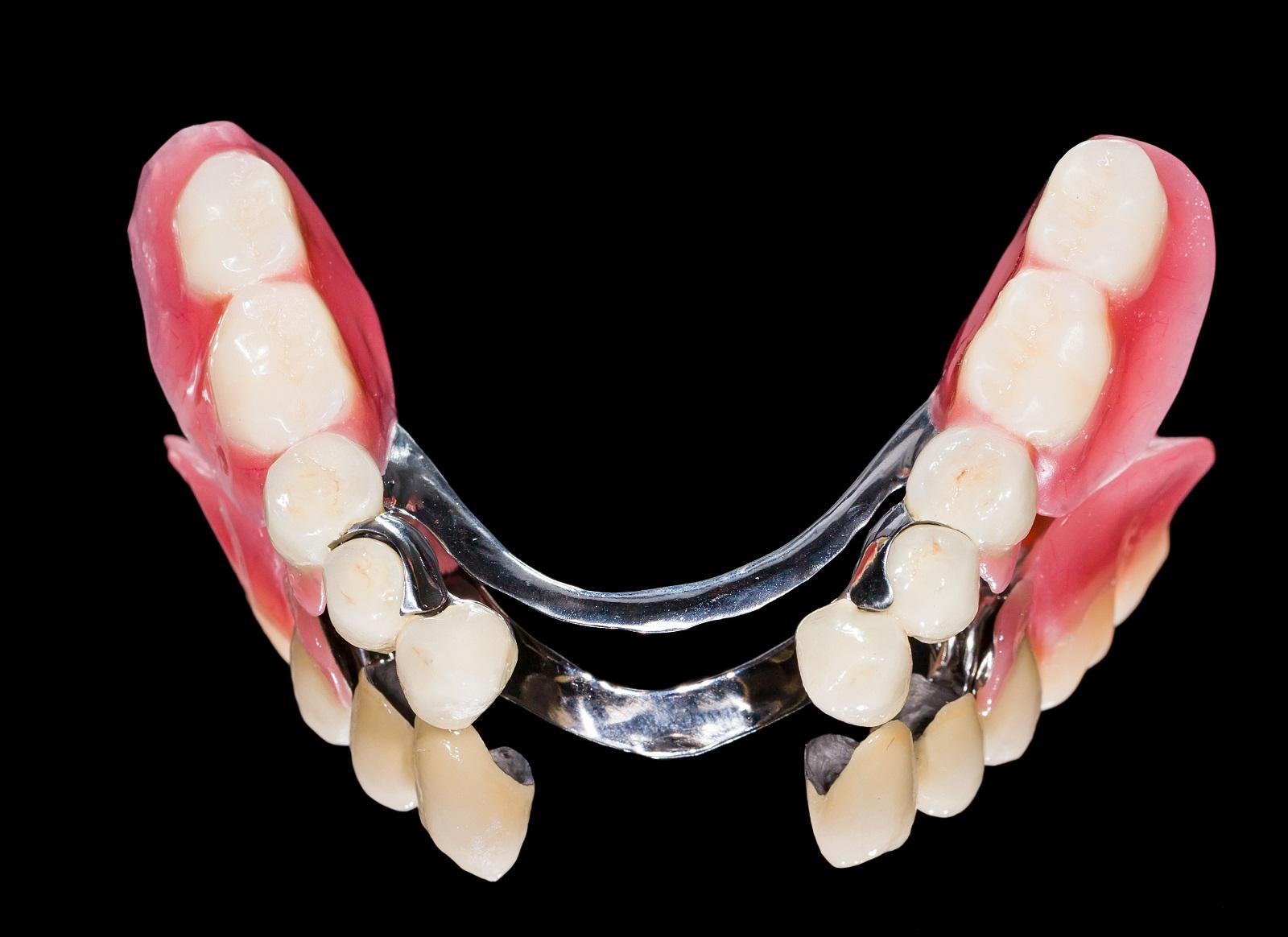 proteza szkieletowa